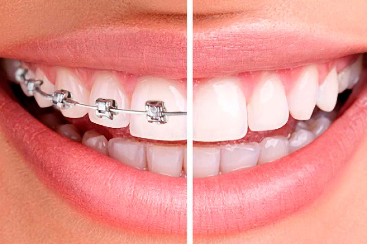 Ortodoncia con o sin Brackets