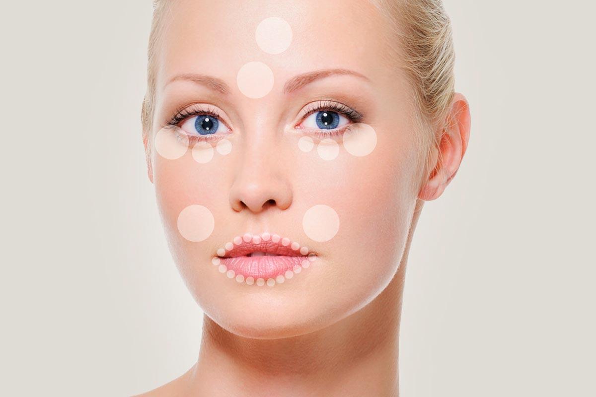 Rejuvenecimento facial – Técnica Ellance